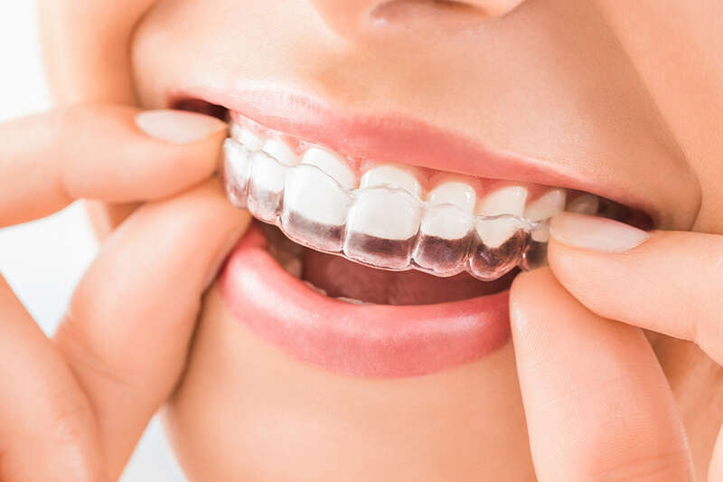 Teeth Grinding Solutions